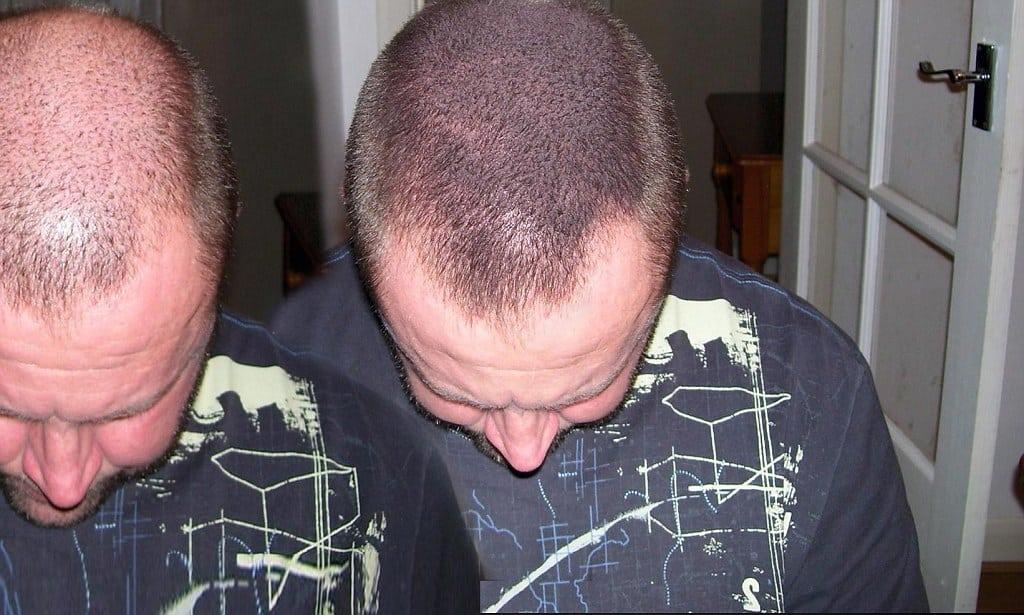 Mikropigmentacja włosów a mikrowłókna - doskonała alternatywa