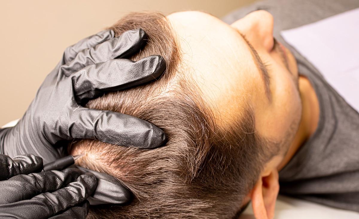 System włosów a mikropigmentacja skóry głowy