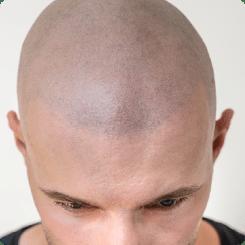 Mikropigmentacja skóry głowy z bliska