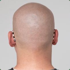 Alopecia Universalis łysienie plackowate całej głowy w Scalpmann