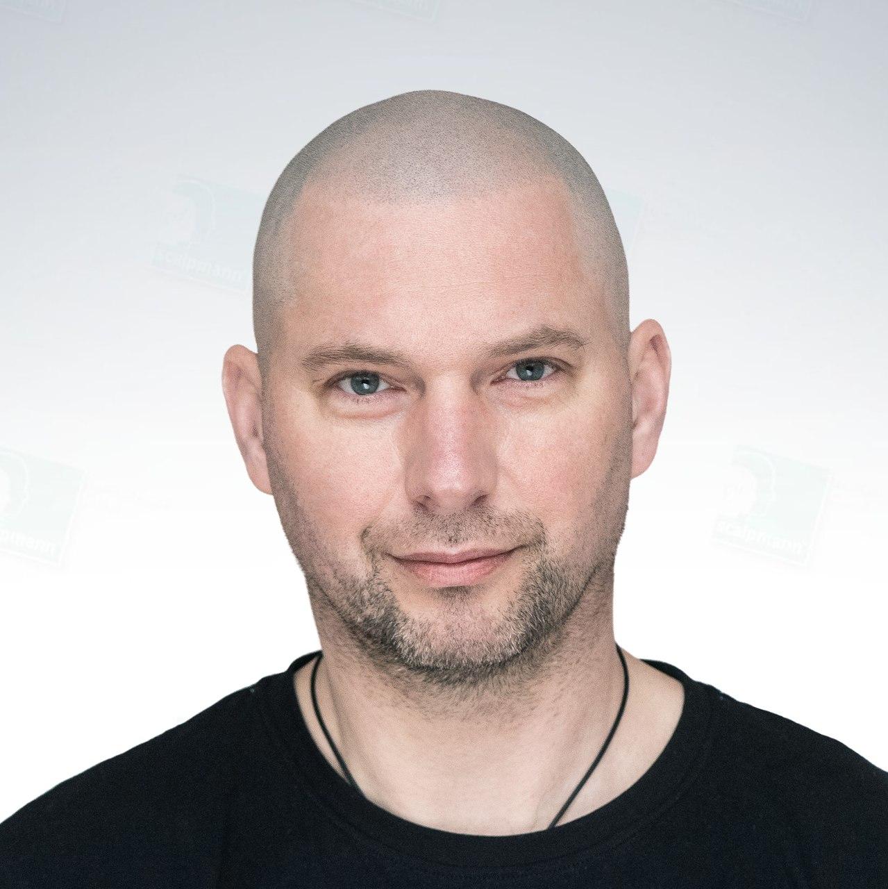 Grzegorz po zabiegu mikropigmentacji skóry głowy