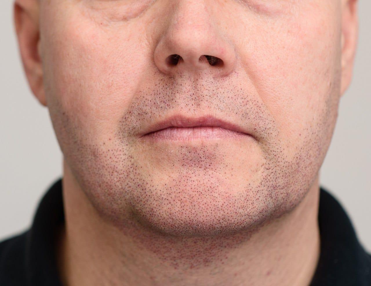 Mężczyzna po zabiegu mikropigmentacji zarostu