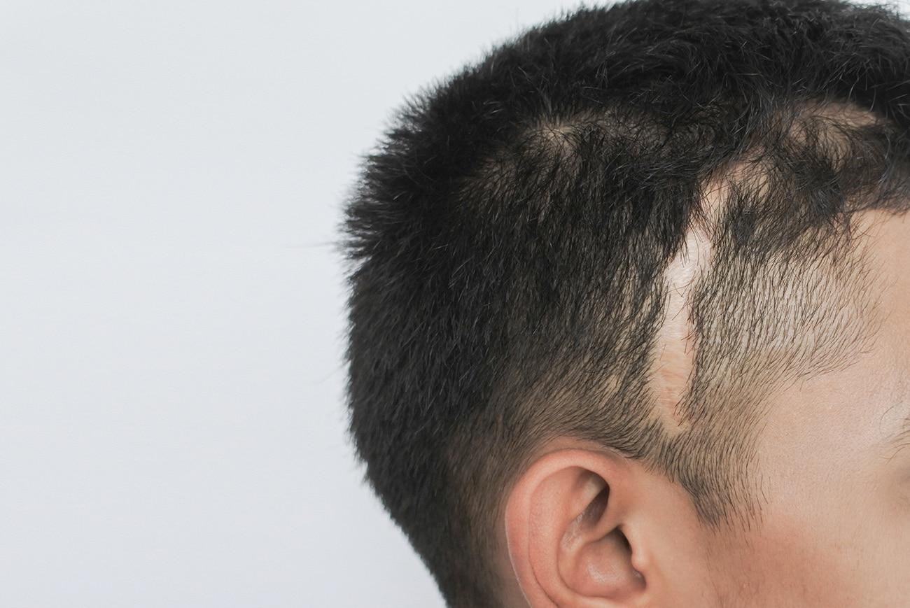 Mikropigmentacja blizn, Usuwanie, maskowanie blizn na głowie, Scalpmann