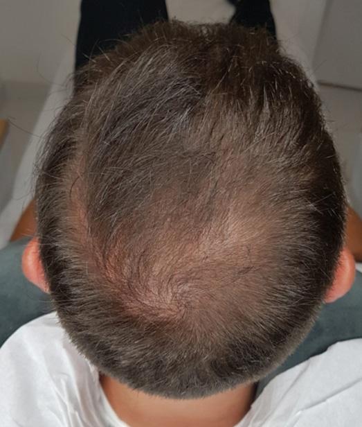 optyczne zagęszczanie włosów scalpmann
