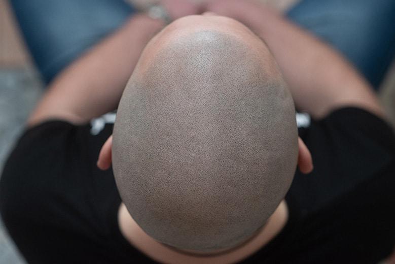 Łysiejący mężczyzna po zabiegu mikropigmentacji włosów