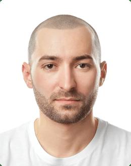 Mężczyzna po wizualizacji wyglądu po zabiegu mikropigmentacji skóry głowy