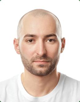 Łysy mężczyzna przed wizualizacją wyglądu po zabiegu mikropigmentacji skóry głowy