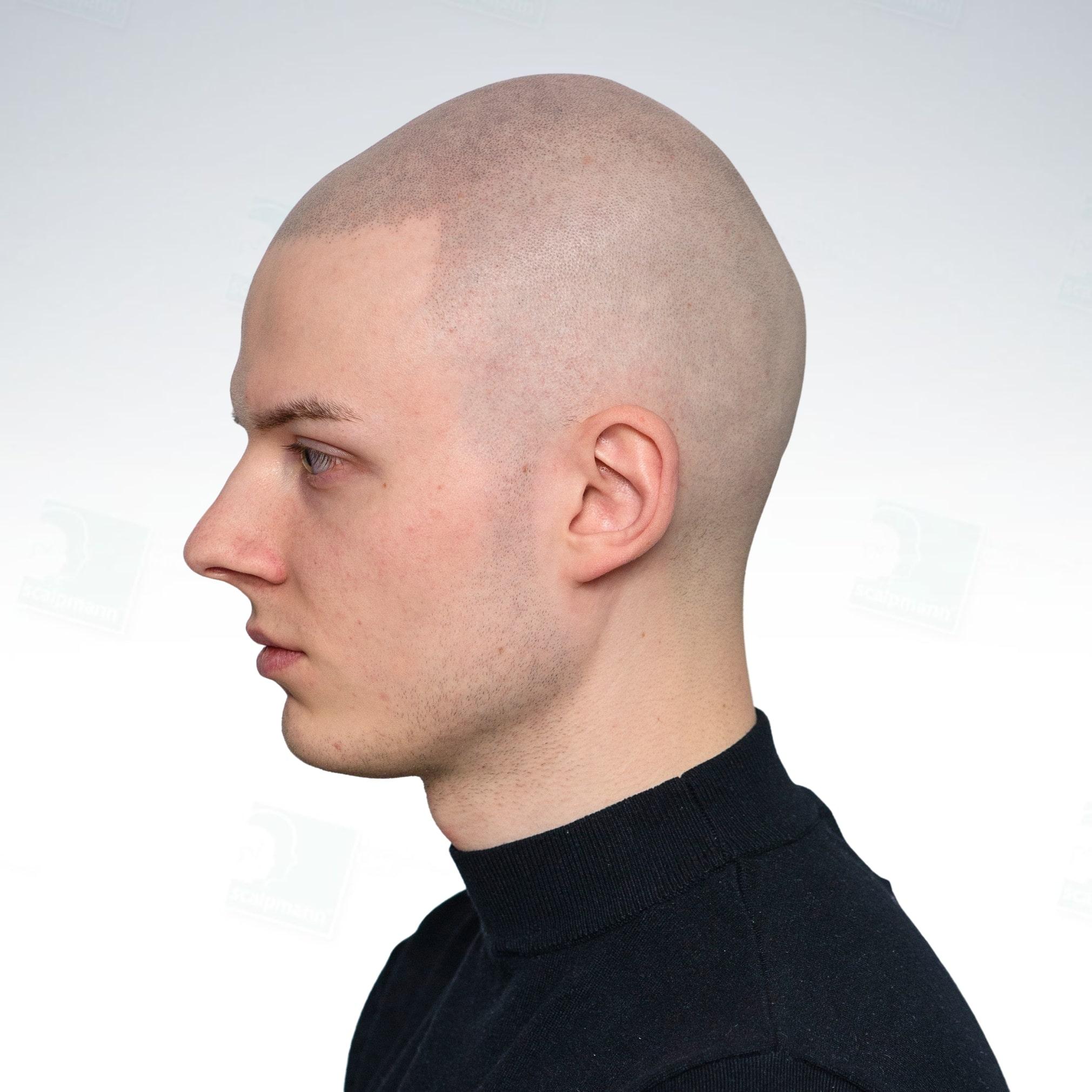 Kamil łysy mężczyzna po zabiegu mikropigmentacji skóry głowy w Scalpmann