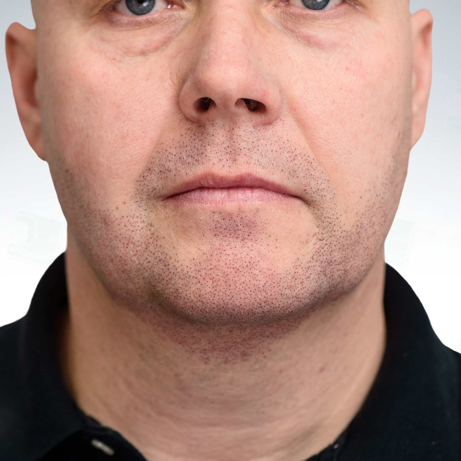 Tatuaż na twarzy imitujący zarost - mikropigmentacja zarostu