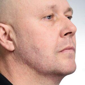 Mikropigmentacja zarostu na twarzy efekty zabiegu